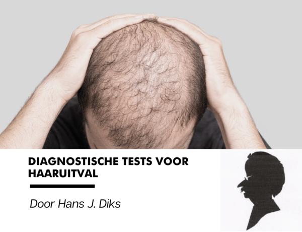 Diagnostische tests voor haaruitval